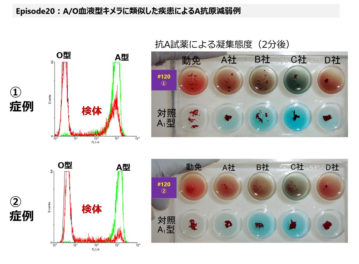 f:id:bloodgroup-tech:20210307094915p:plain