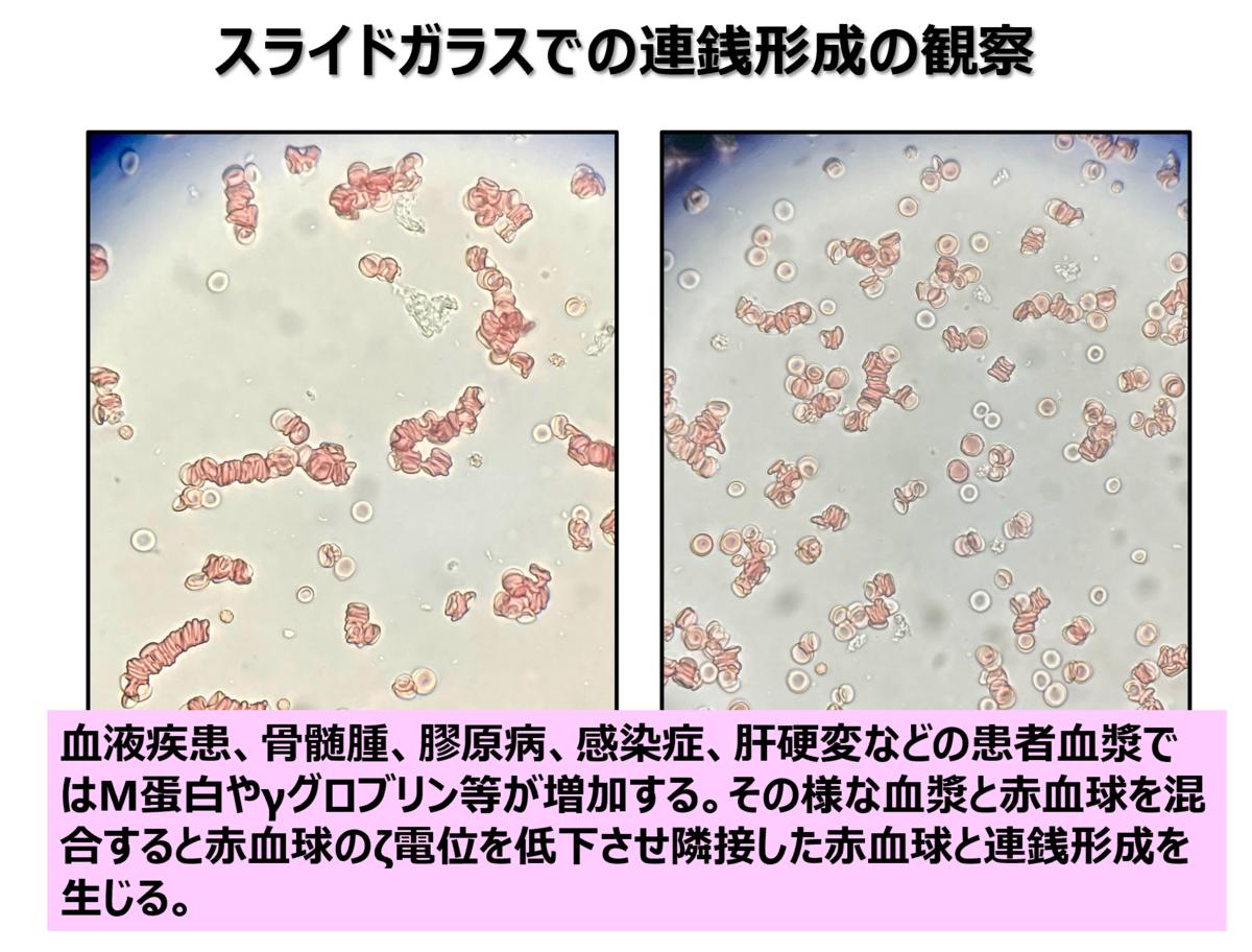 f:id:bloodgroup-tech:20210524053339p:plain