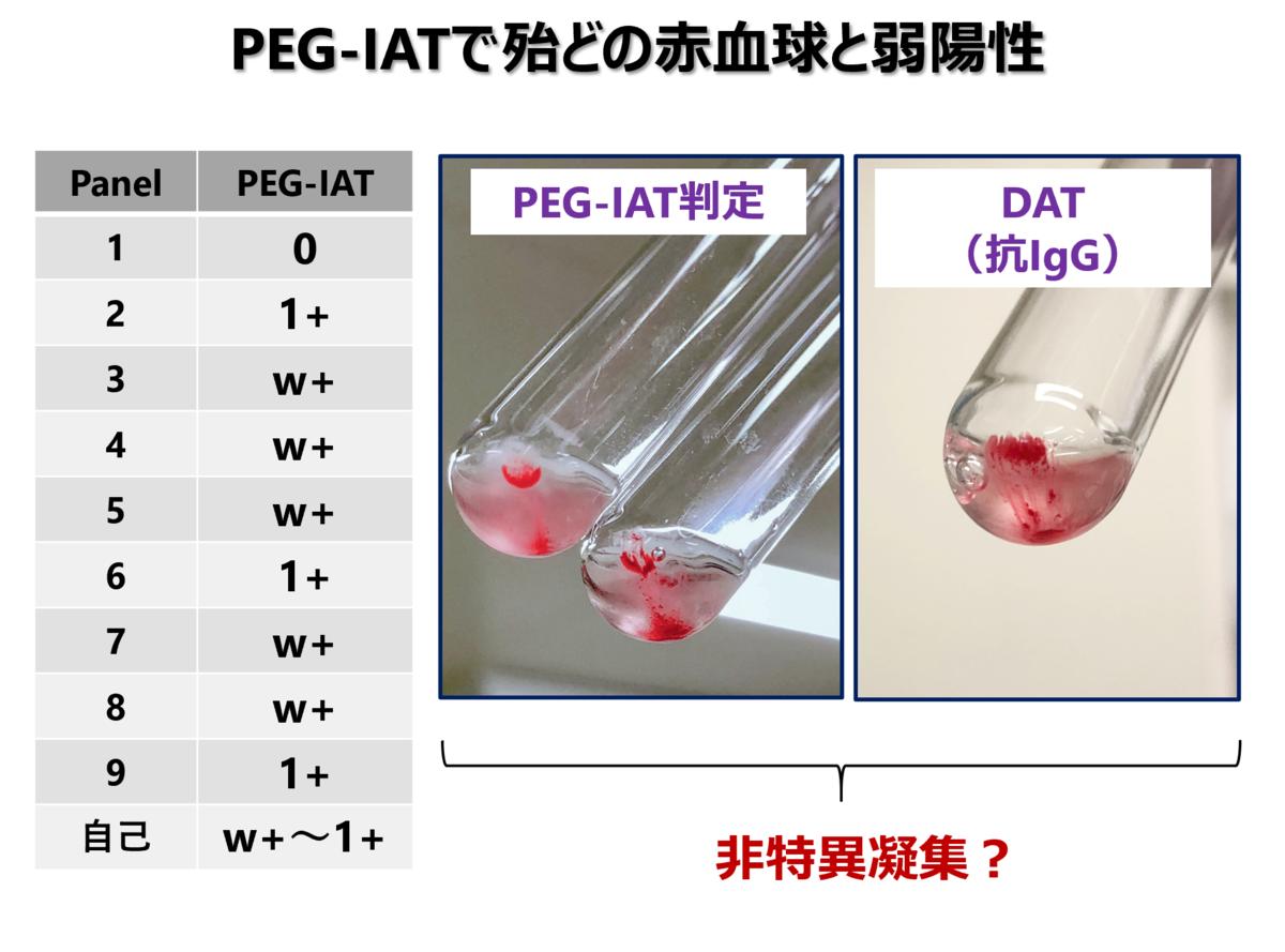 f:id:bloodgroup-tech:20210524053406p:plain