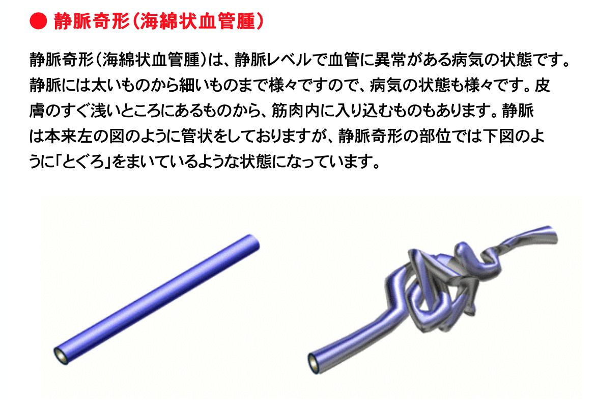 f:id:bochibochika:20200414025517p:plain