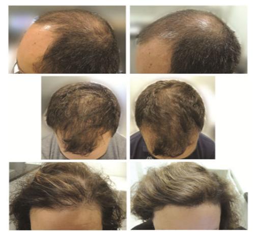 育毛サプリメントによるビフォーアフター画像(文献より引用)