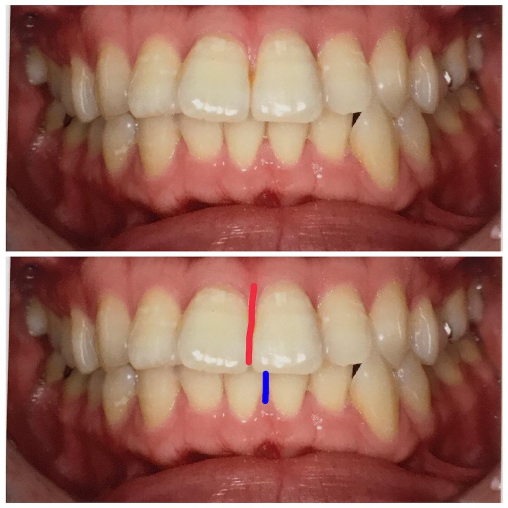 f:id:braces31:20170621224858j:image