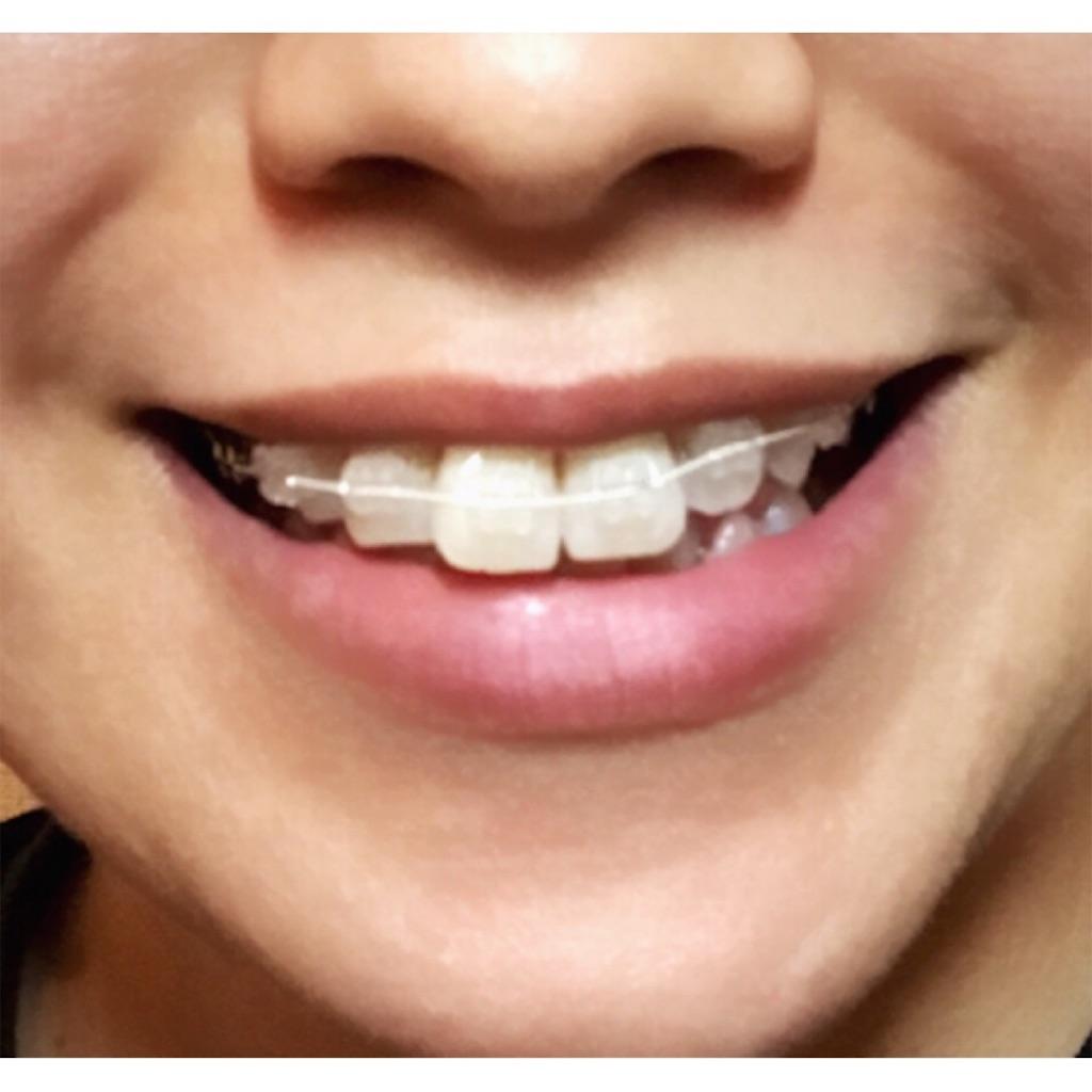 f:id:braces31:20170714215745j:image