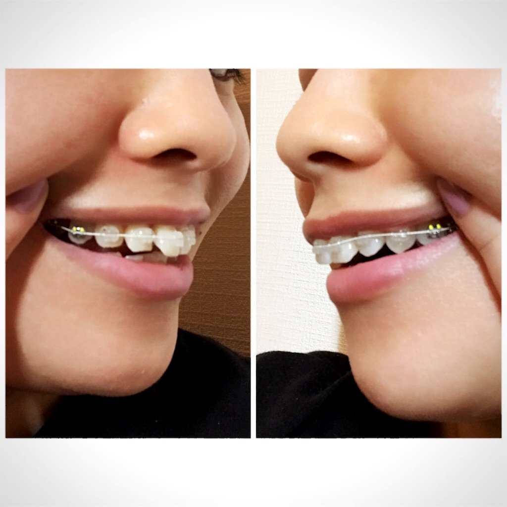 f:id:braces31:20170714215750j:image