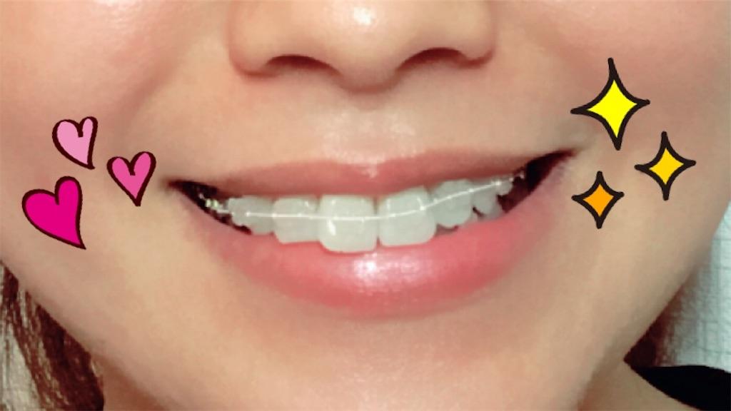 f:id:braces31:20170716174556j:image