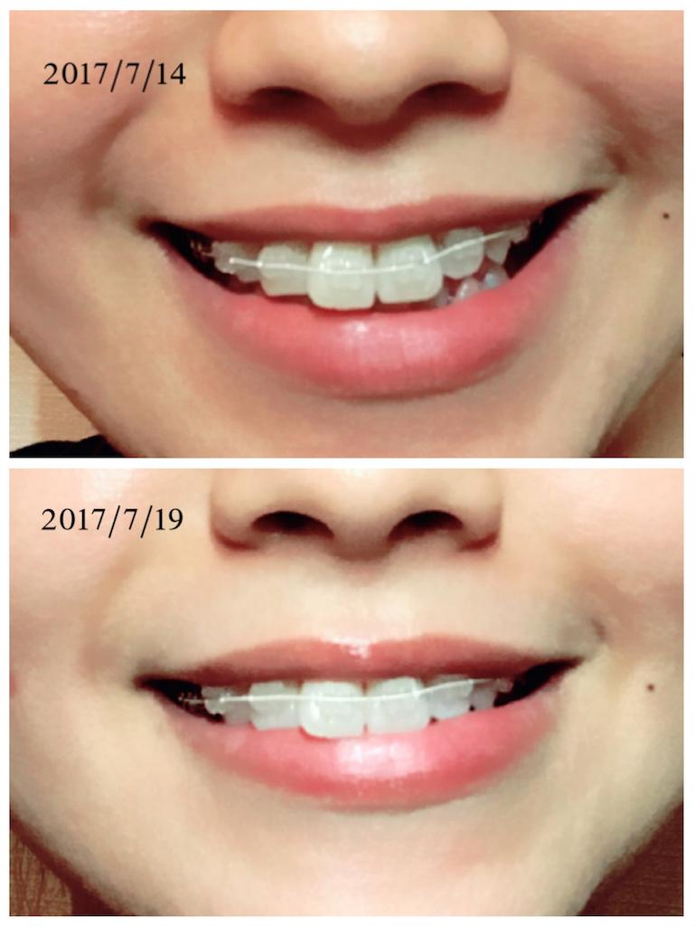 f:id:braces31:20170719211819p:image
