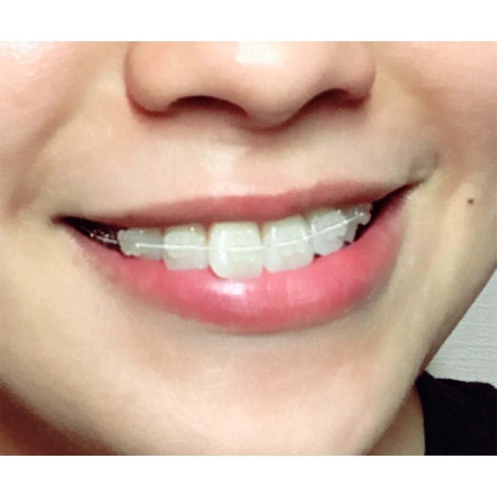 f:id:braces31:20170807221648j:image