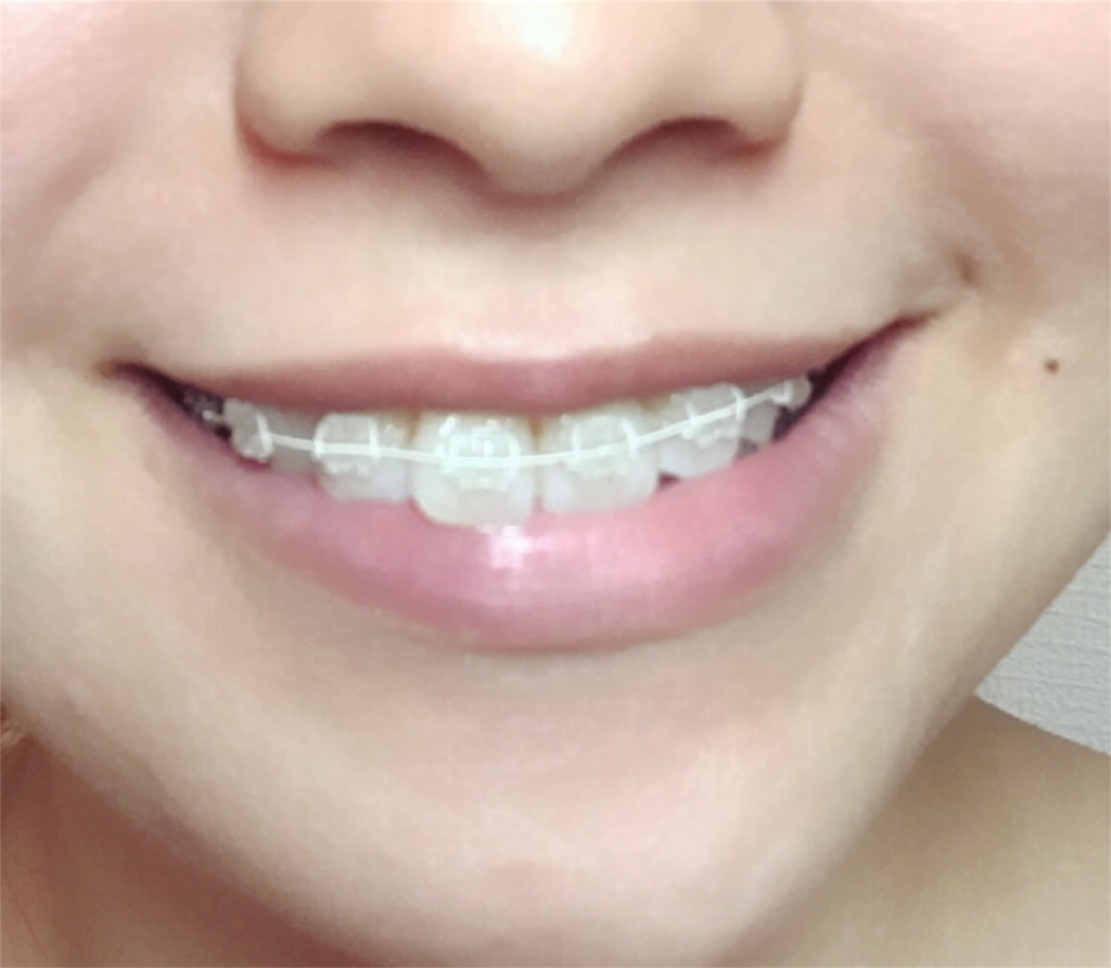 f:id:braces31:20170821225409j:image