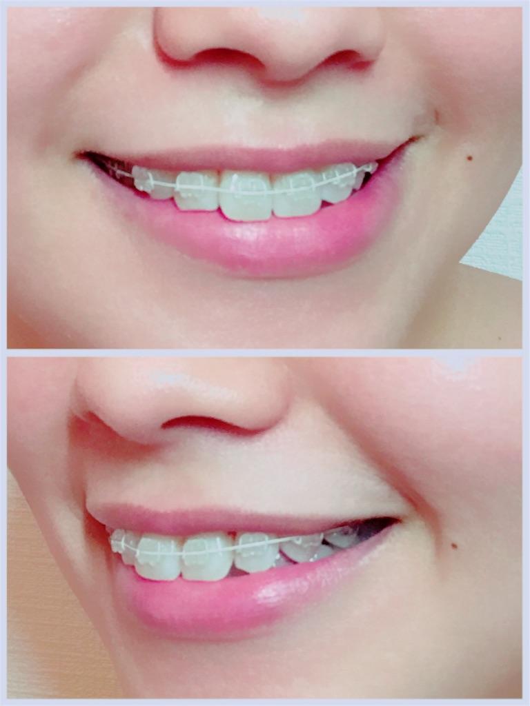 f:id:braces31:20170826235706j:image