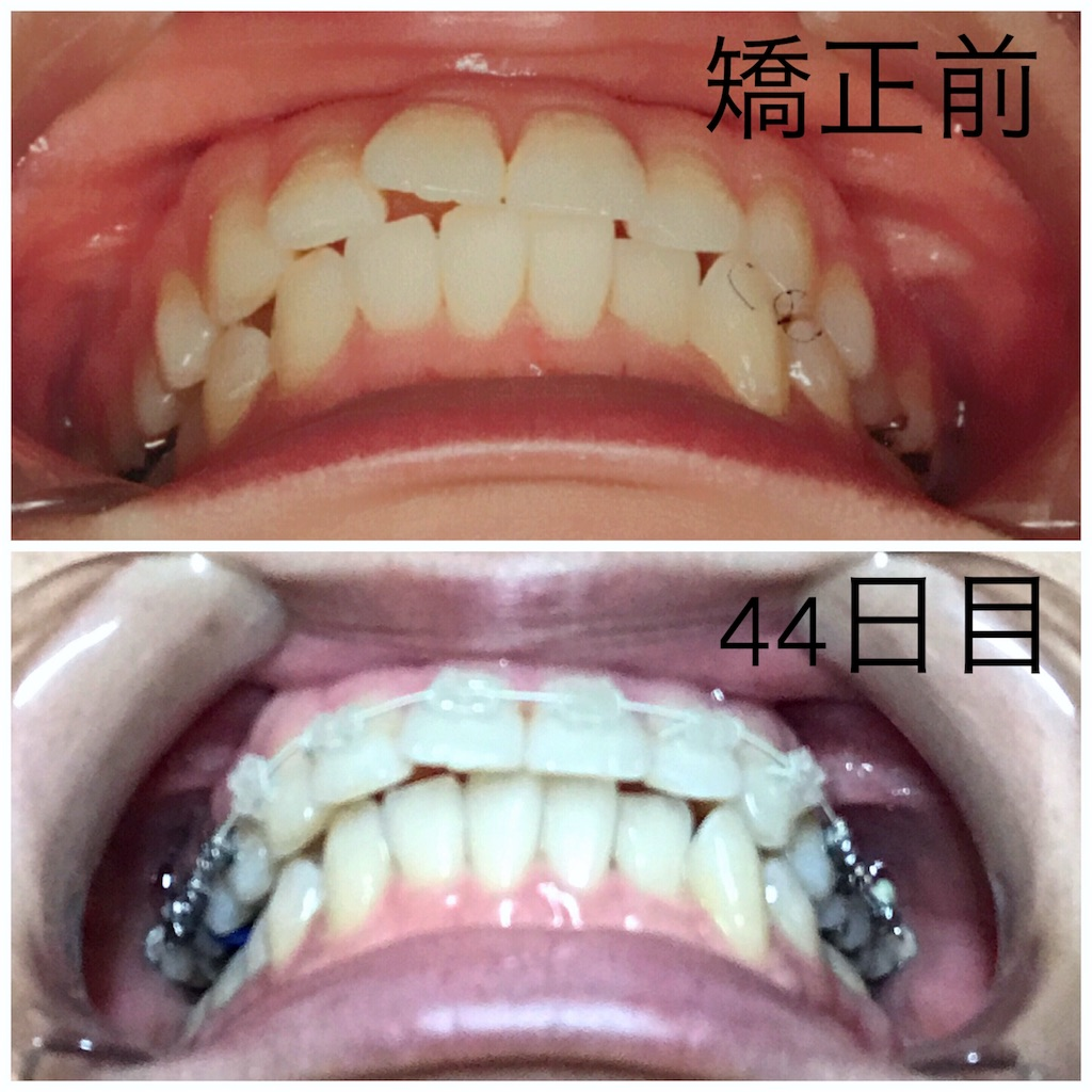 f:id:braces31:20170826235956j:image