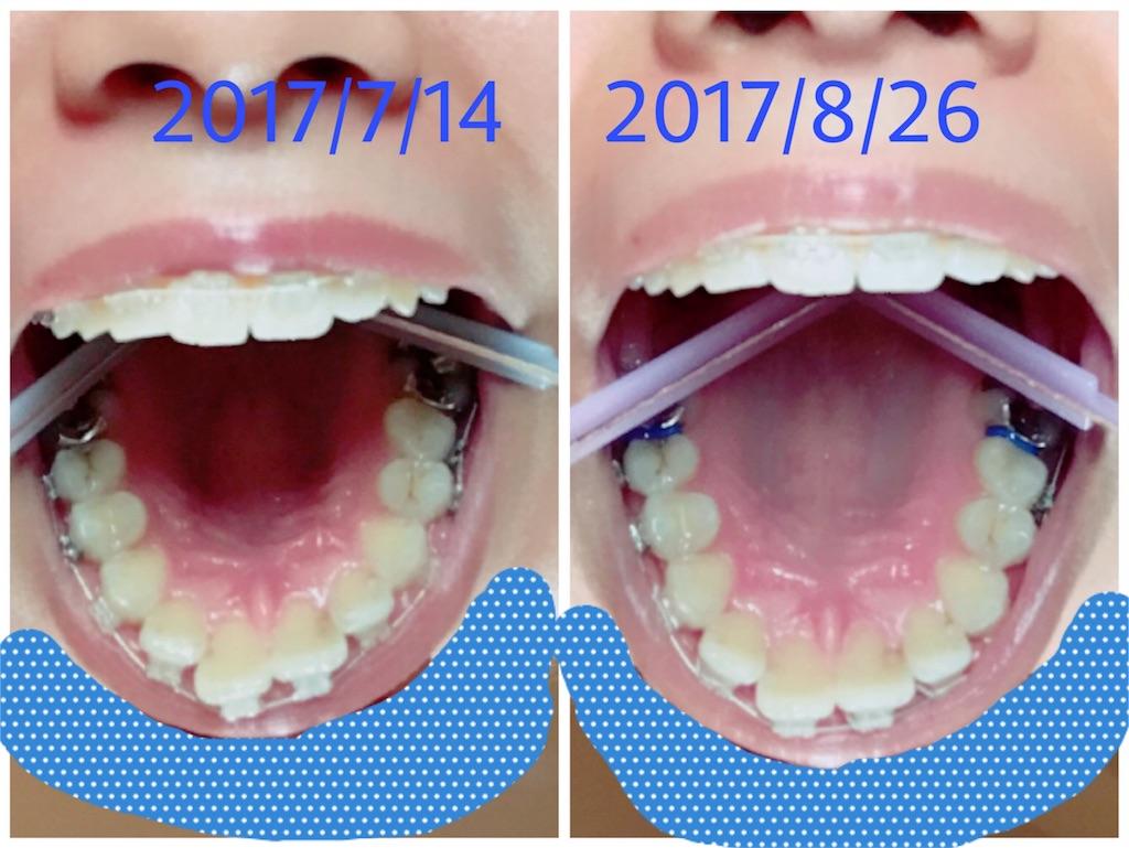 f:id:braces31:20170827001013j:image