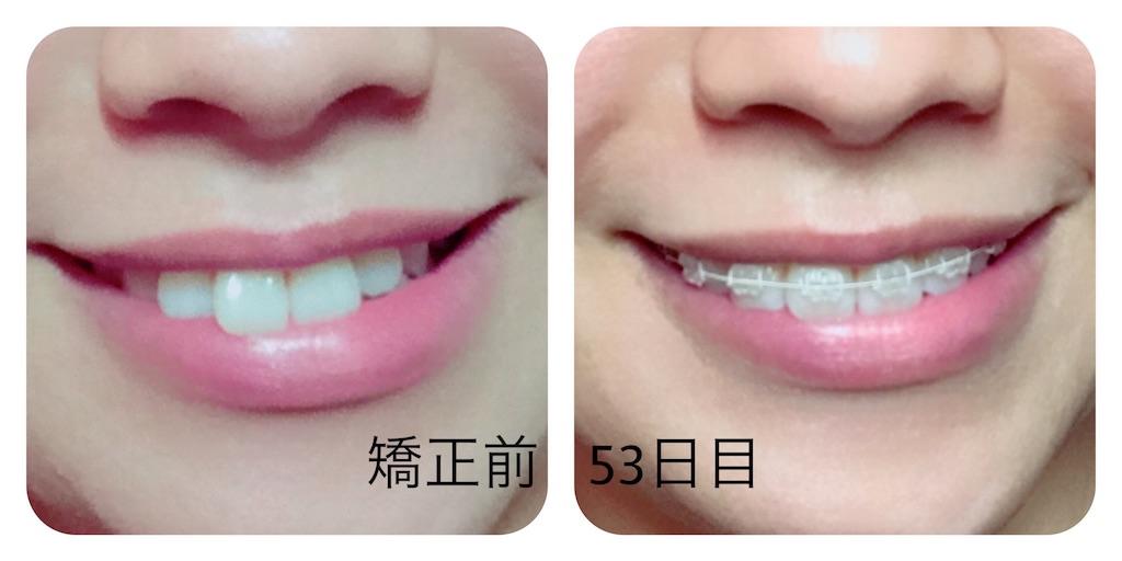 f:id:braces31:20170904231818j:image