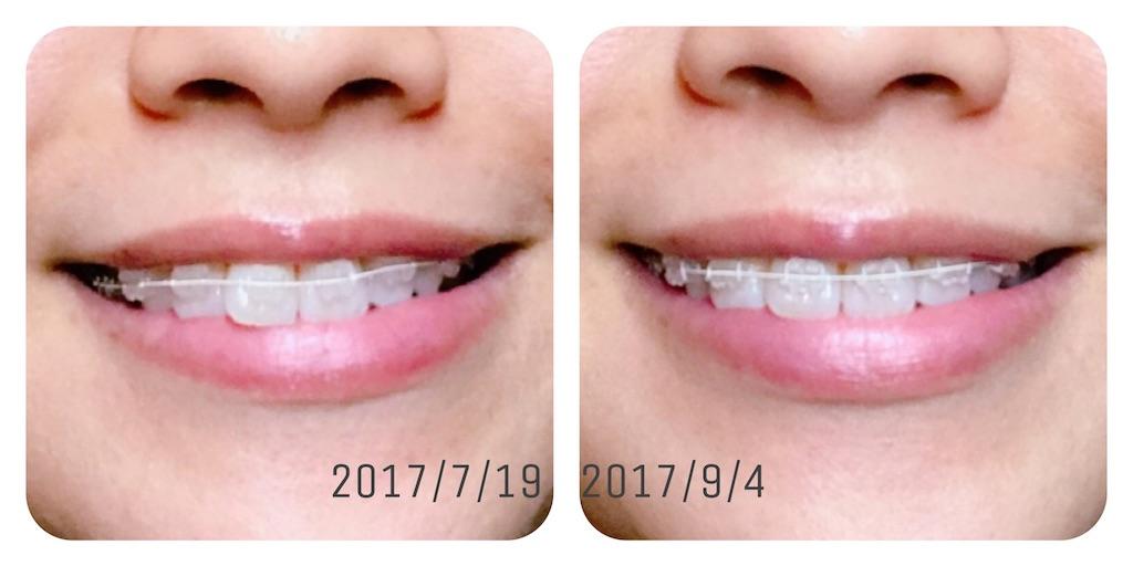 f:id:braces31:20170904232041j:image