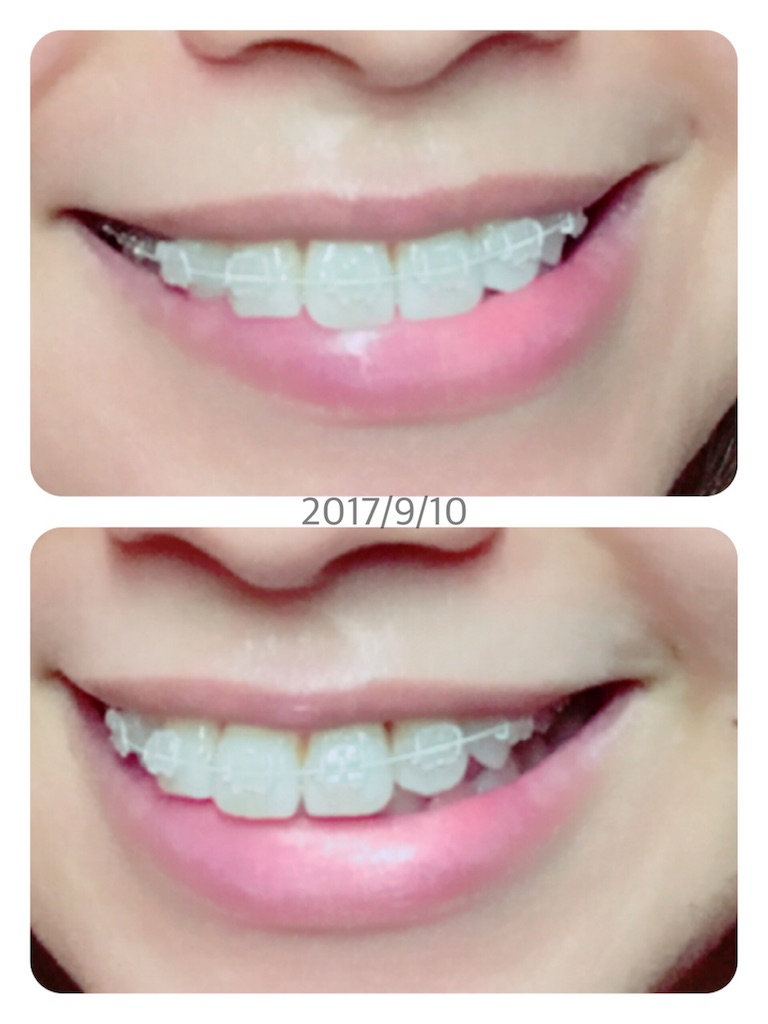 f:id:braces31:20170910200727j:image