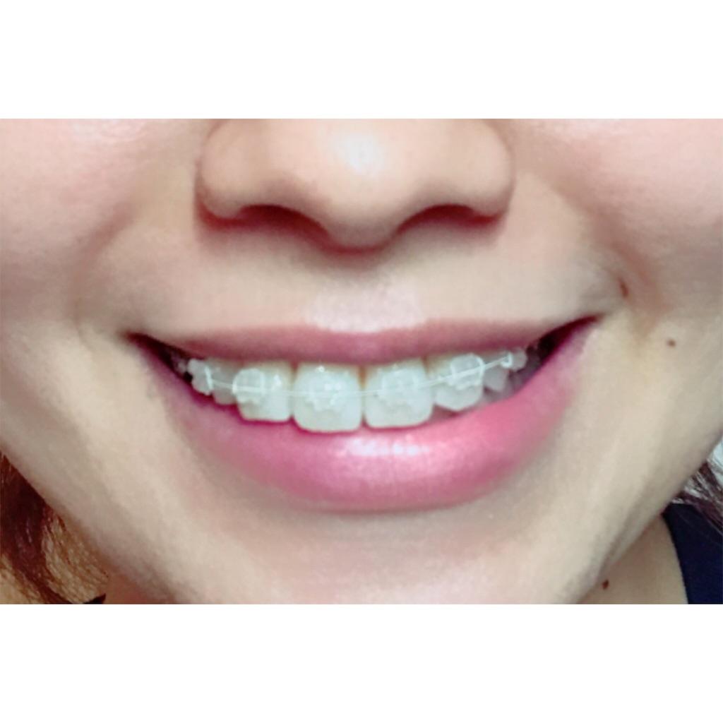 f:id:braces31:20170920232133j:image