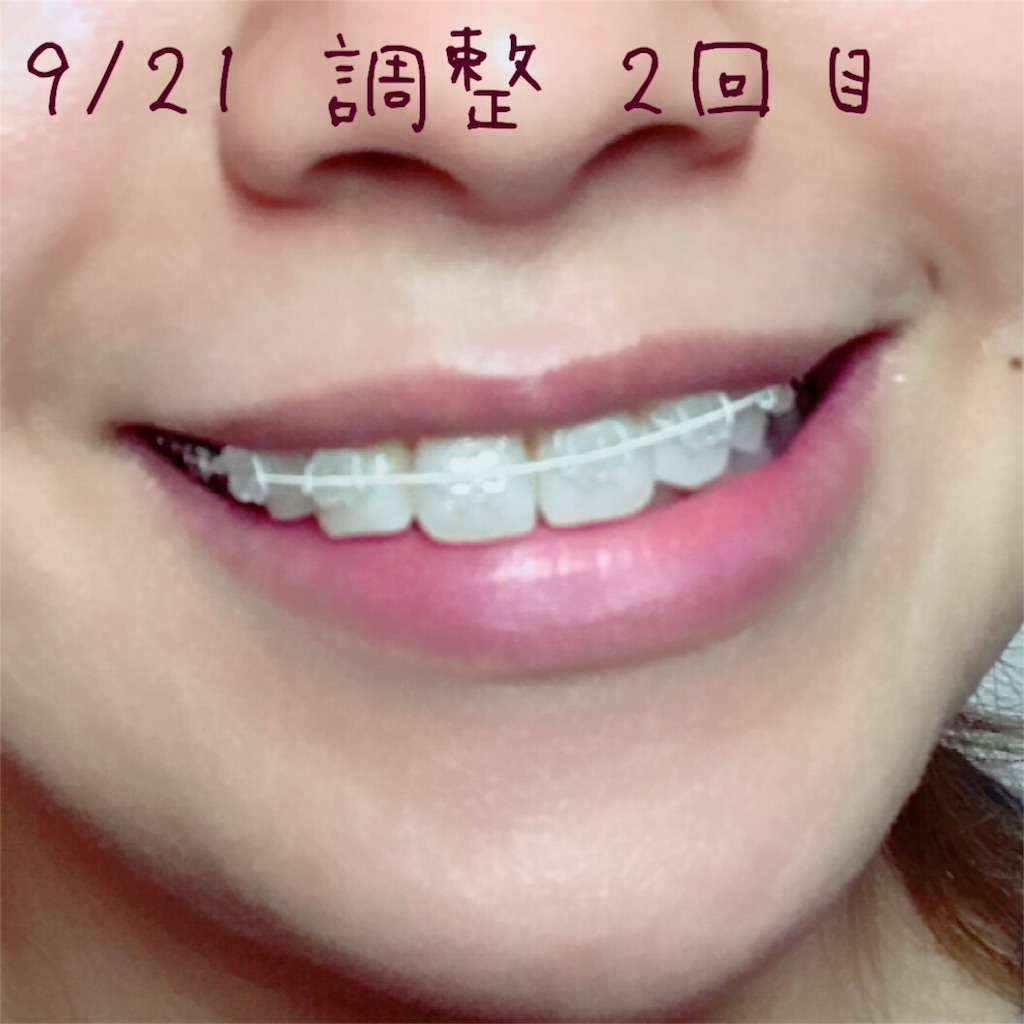 f:id:braces31:20170921225539j:image