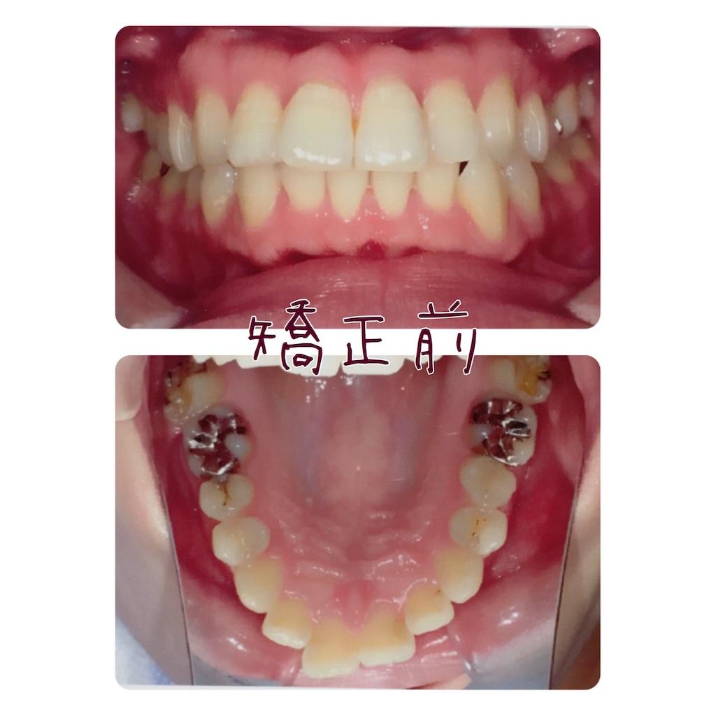 f:id:braces31:20170921225836j:image