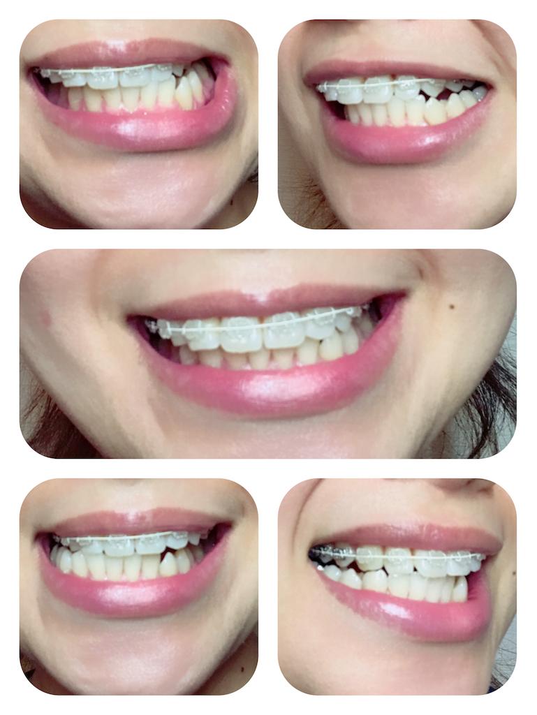 f:id:braces31:20170923002641p:image