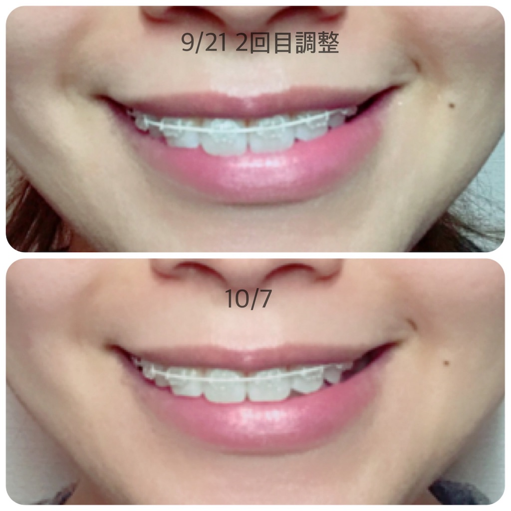 f:id:braces31:20171007225605j:image
