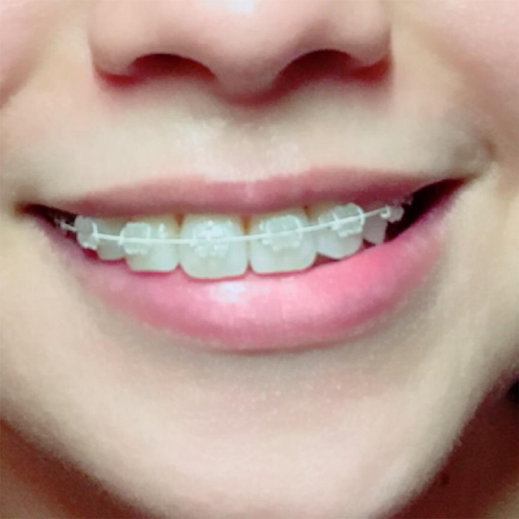 f:id:braces31:20171015005202j:image