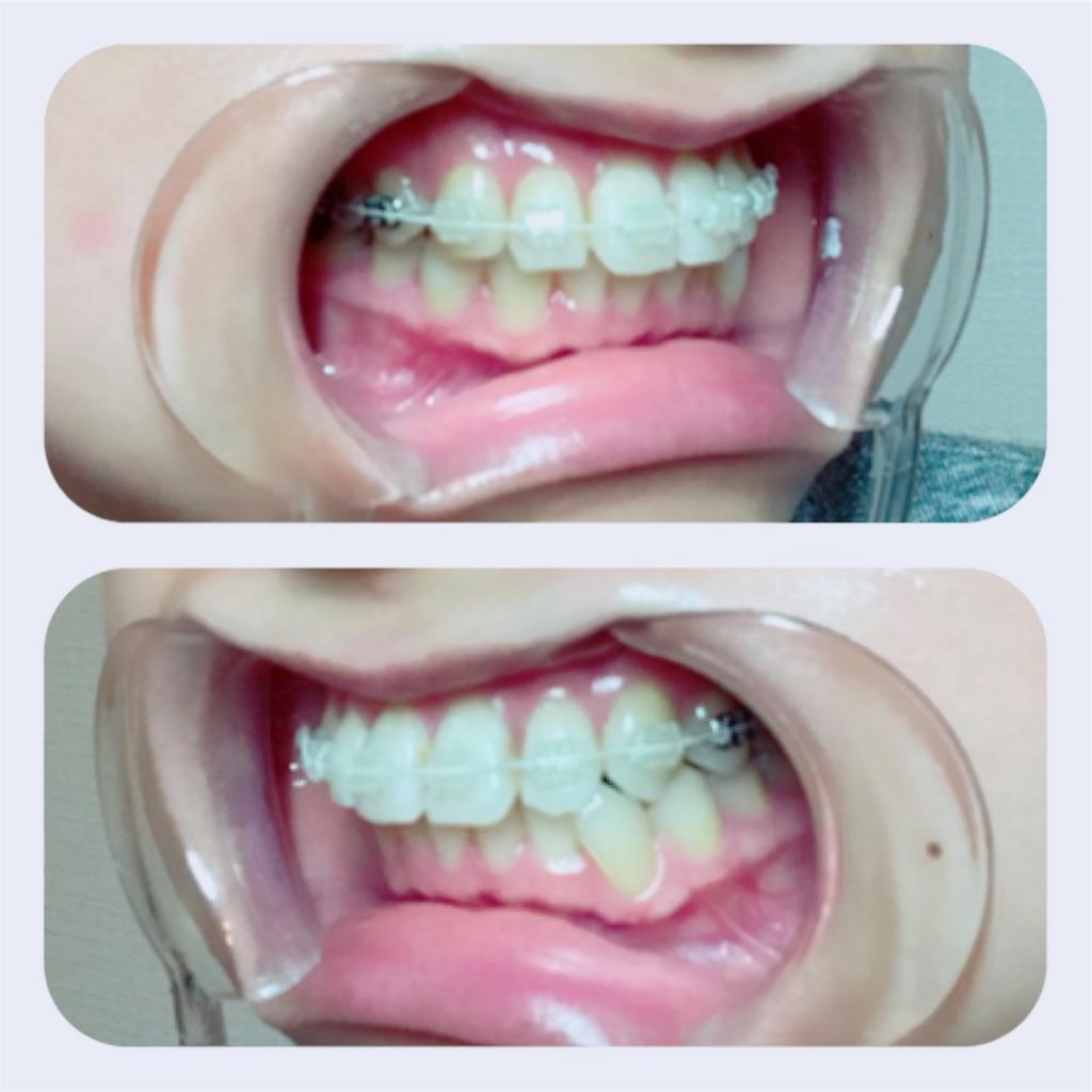 f:id:braces31:20171026233131j:image
