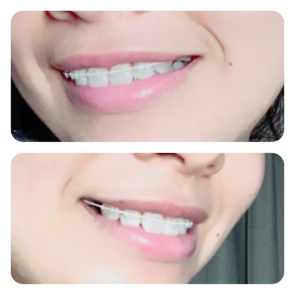 f:id:braces31:20171027225305j:image