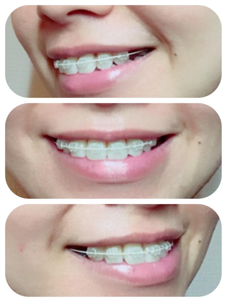 f:id:braces31:20171028234844j:image