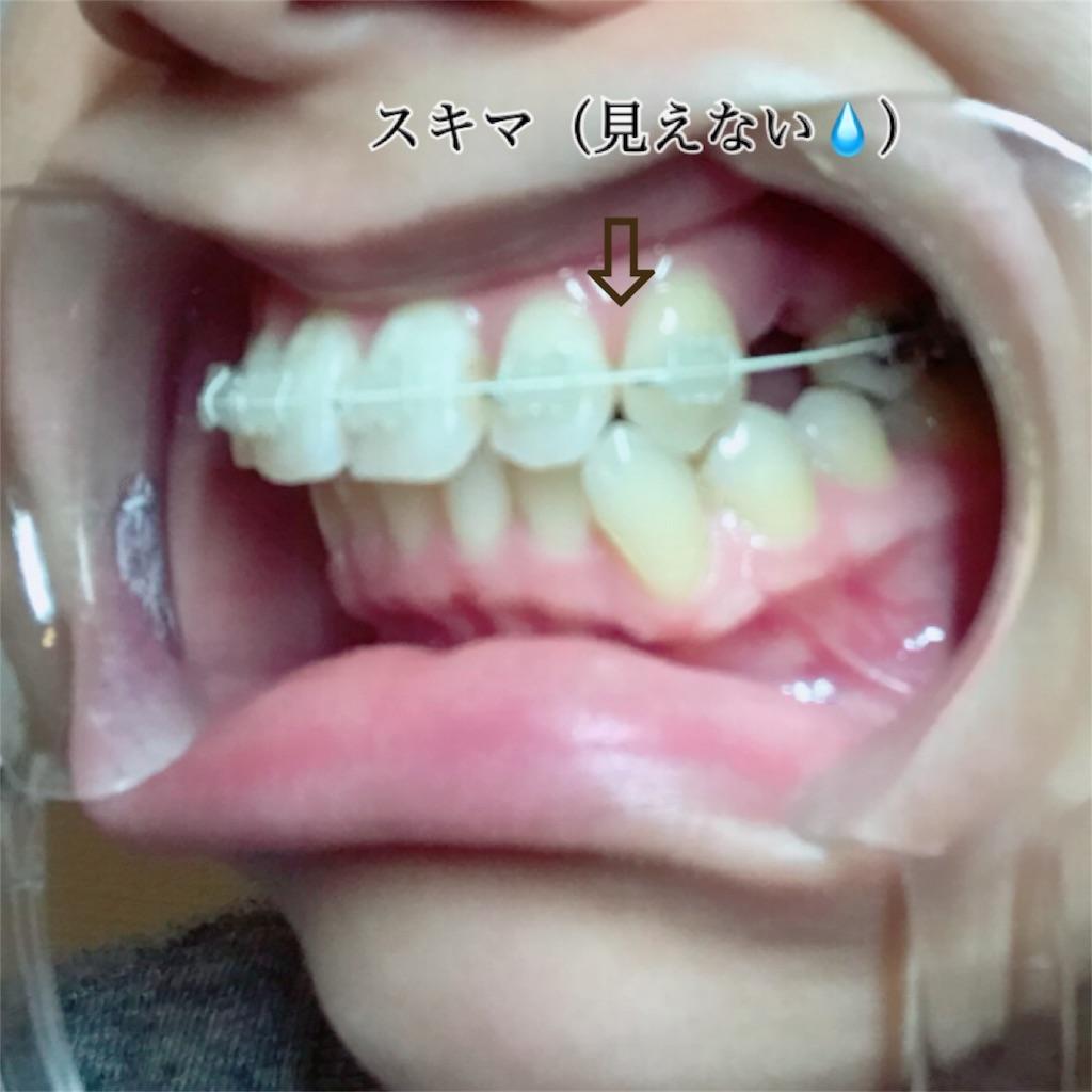 f:id:braces31:20171105013807j:image
