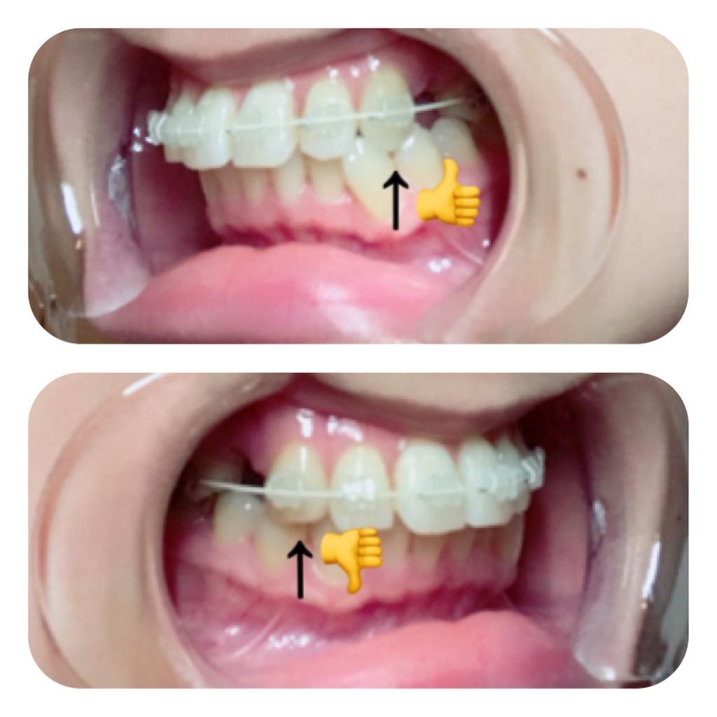 f:id:braces31:20171105014042j:image