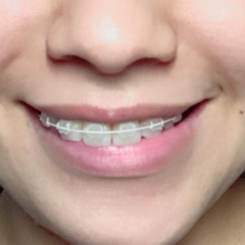 f:id:braces31:20171105221757j:image