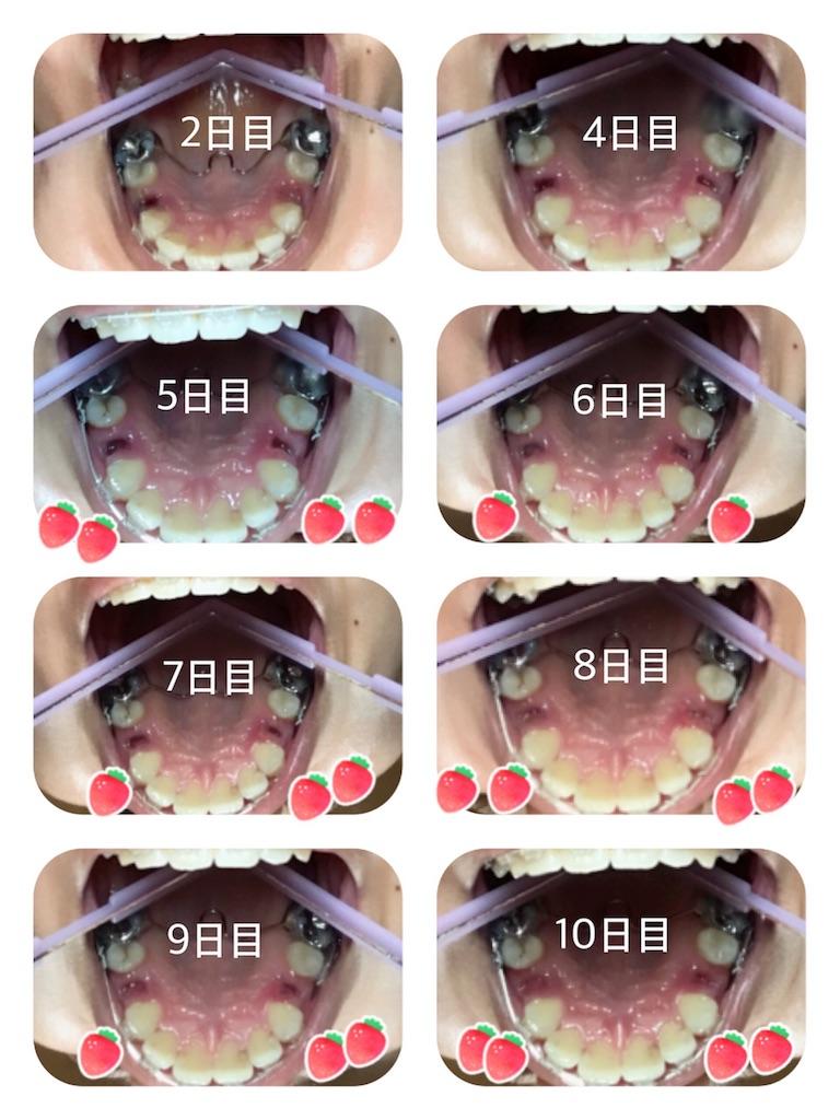 f:id:braces31:20171105222819j:image