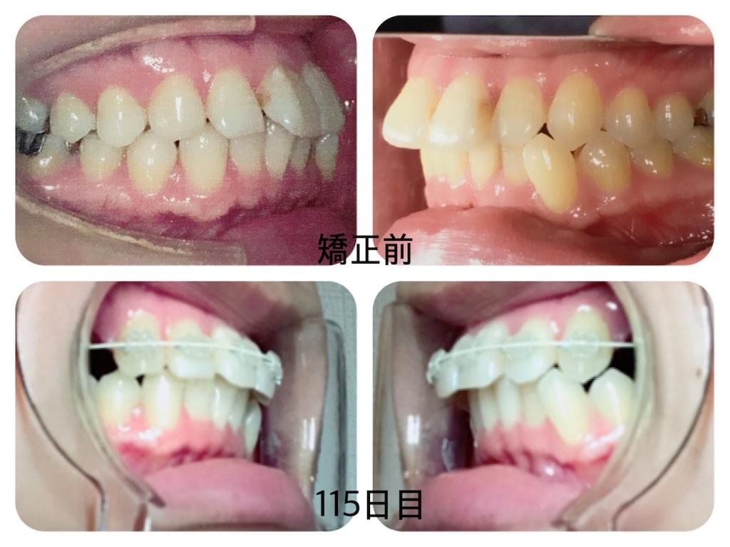 f:id:braces31:20171105224958j:image