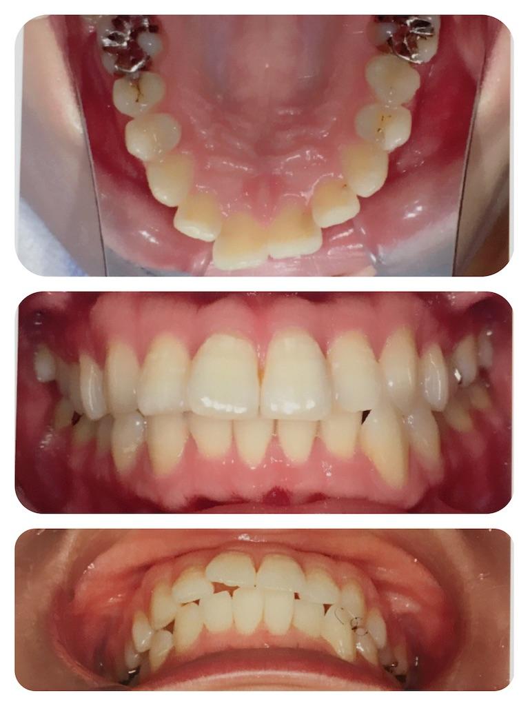 f:id:braces31:20171114222327j:image