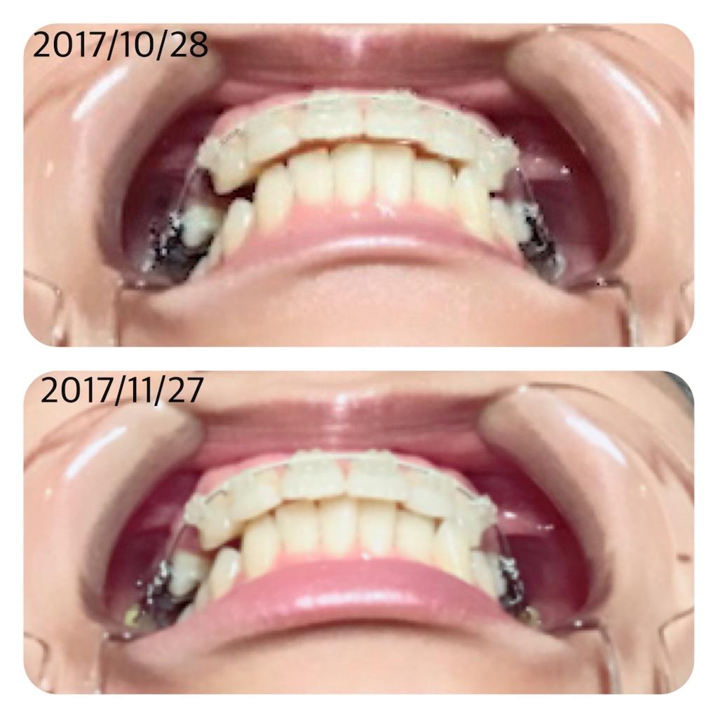 f:id:braces31:20171127223843j:image