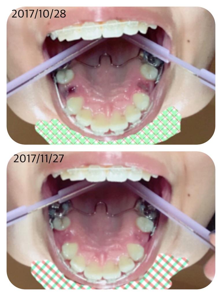 f:id:braces31:20171127223951j:image