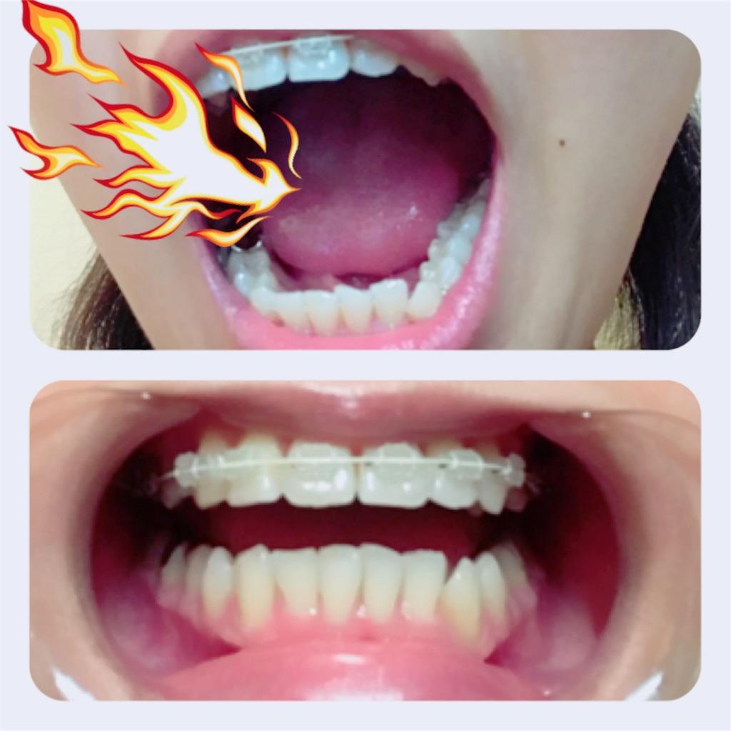 f:id:braces31:20171127224500j:image