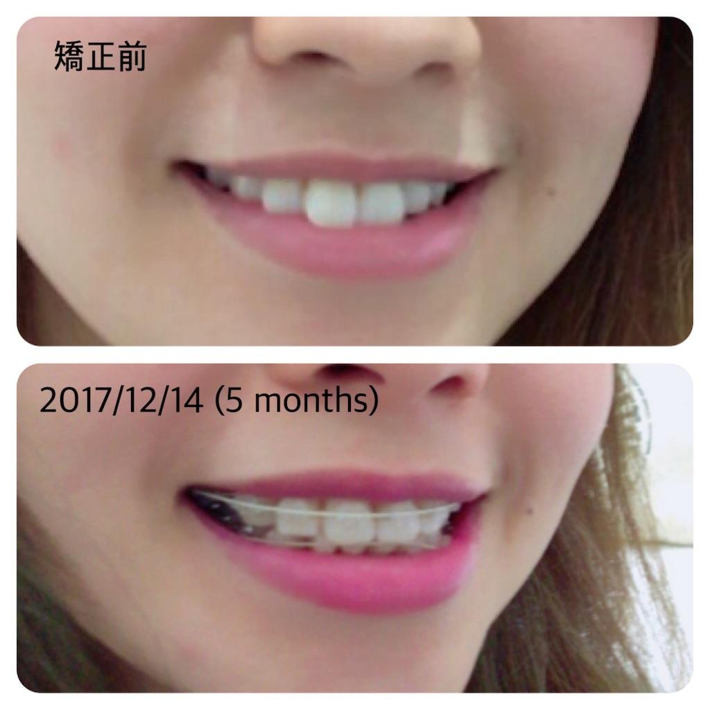 f:id:braces31:20171214230503j:image