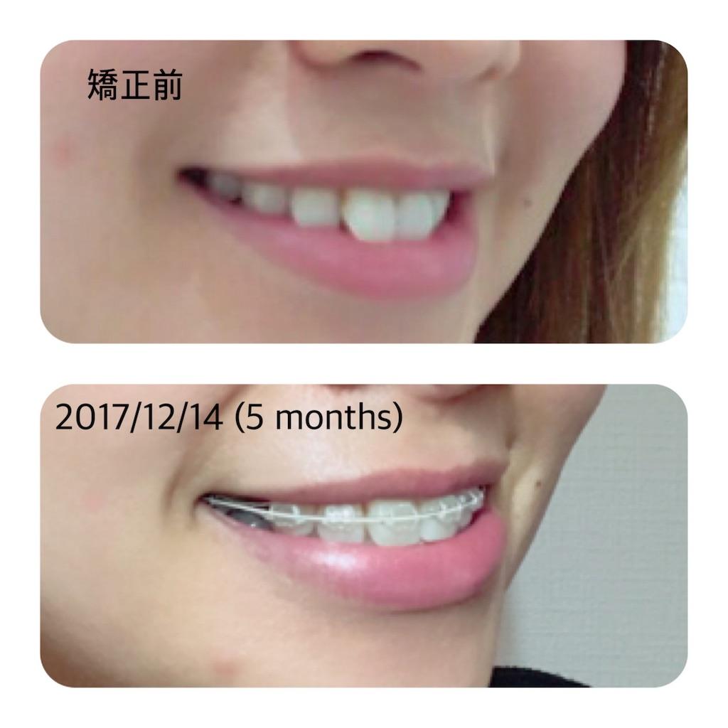 f:id:braces31:20171214230542j:image