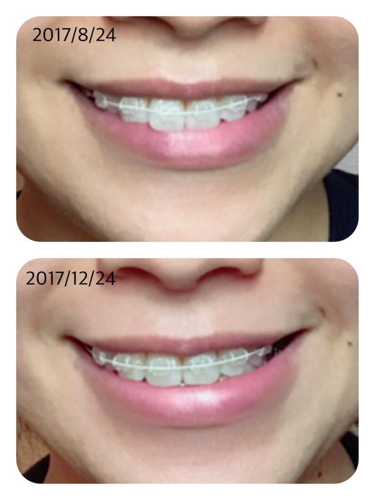 f:id:braces31:20171224052240j:image