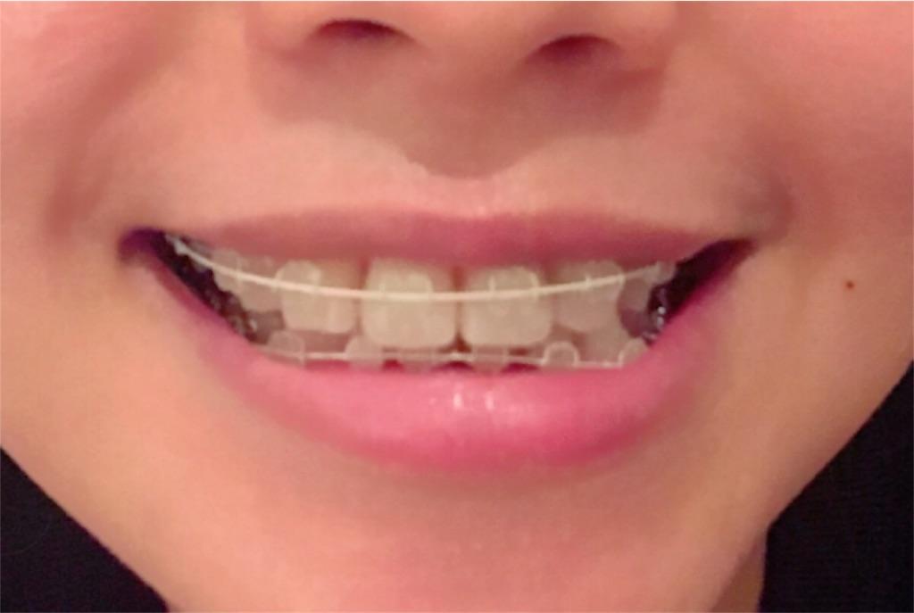 f:id:braces31:20180106192304j:image