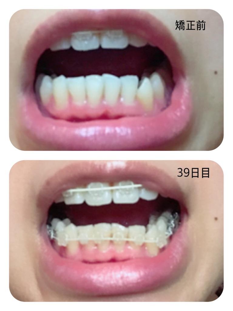 f:id:braces31:20180106192512j:image