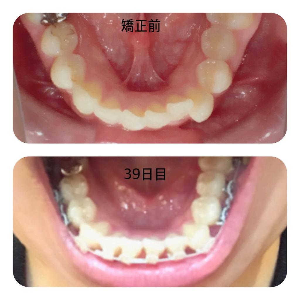 f:id:braces31:20180106192544j:image