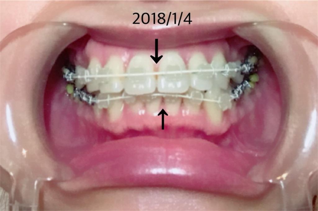 f:id:braces31:20180107185538j:image
