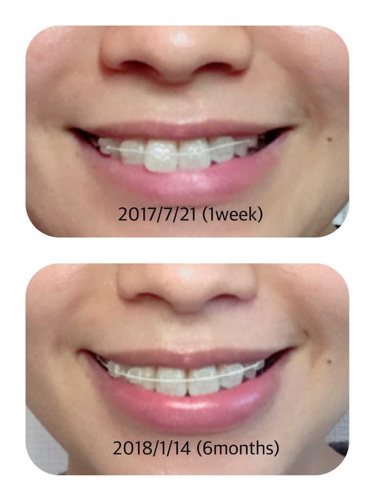 f:id:braces31:20180114173739j:image
