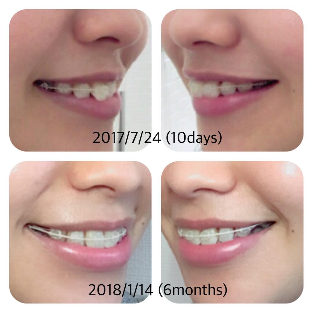 f:id:braces31:20180114173748j:image