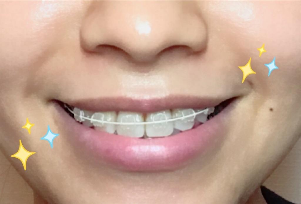 f:id:braces31:20180126223345j:image