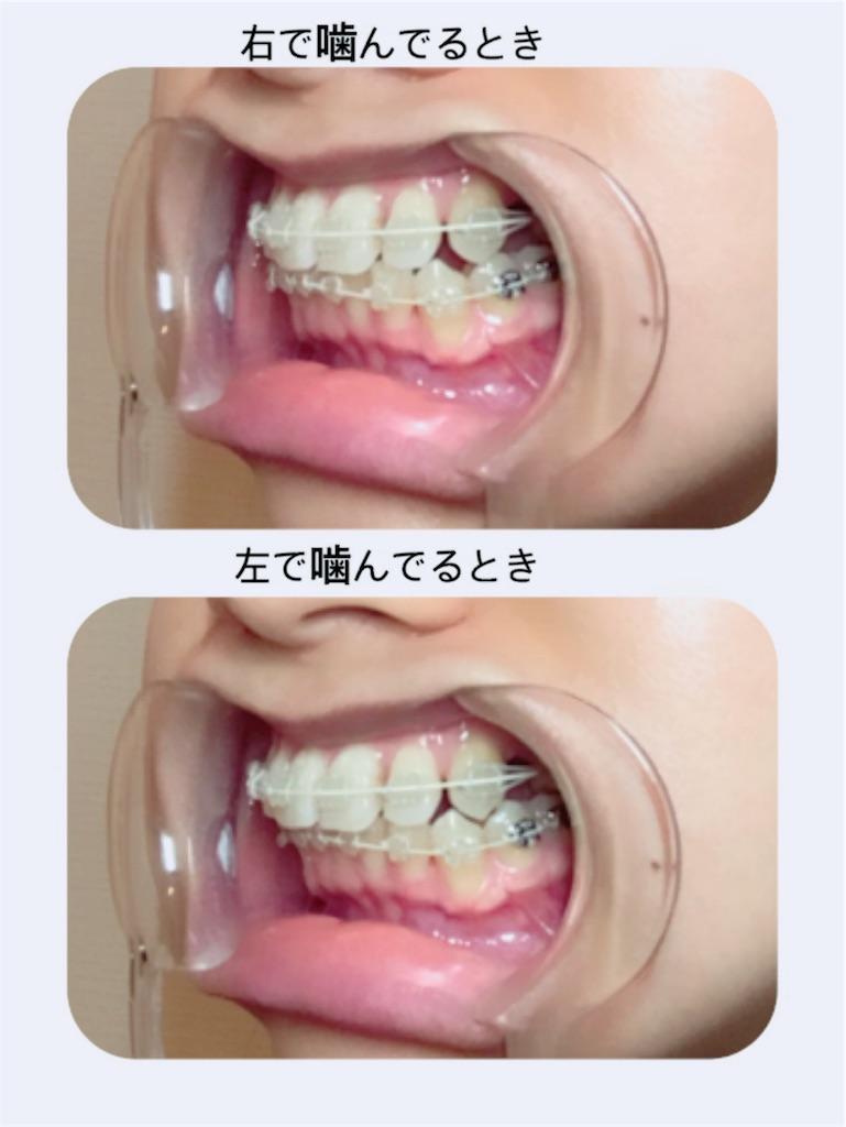 f:id:braces31:20180126223609j:image