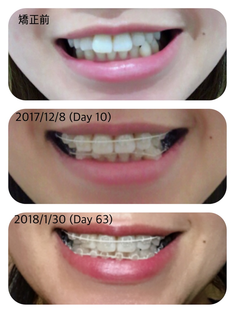 f:id:braces31:20180130205435j:image