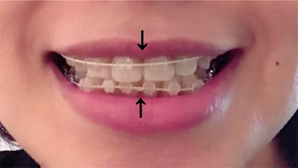 f:id:braces31:20180202225048j:image