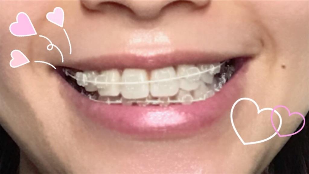 f:id:braces31:20180207220311j:image